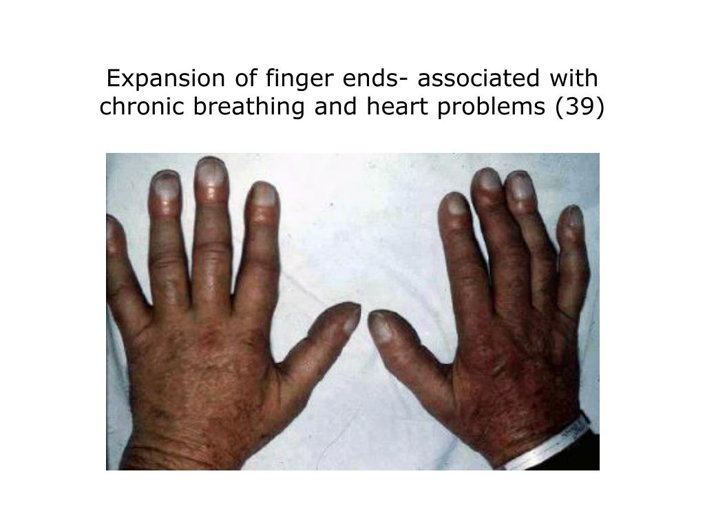 Expansion of finger ends- associated with chronic breathing and heart problems (39)