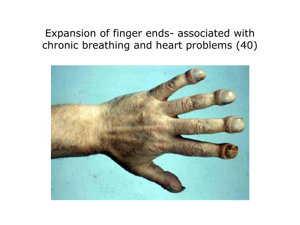 Expansion of finger ends- associated with chronic breathing and heart problems (40)