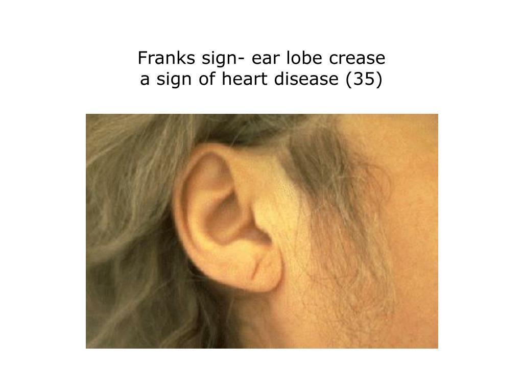 Franks sign- ear lobe crease