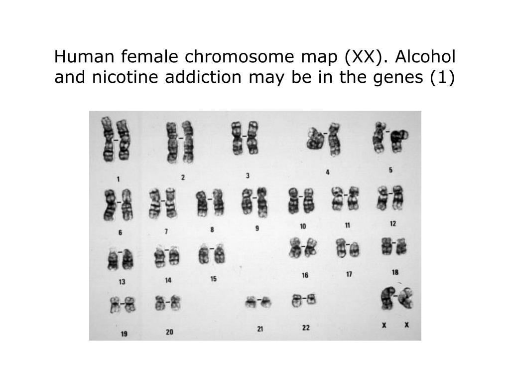 Human female chromosome map (XX). Alcohol and nicotine addiction may be in the genes (1)