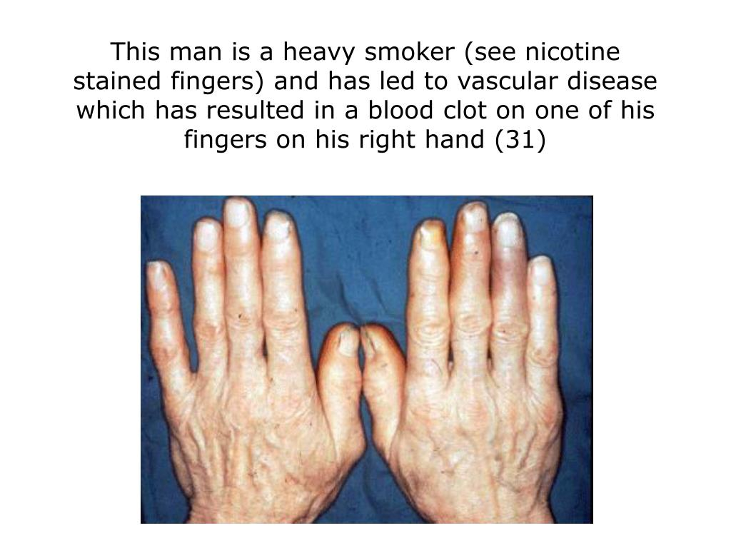 This man is a heavy smoker (see nicotine stained fingers) and has led to vascular disease which has resulted in a blood clot on one of his fingers on his right hand (31)