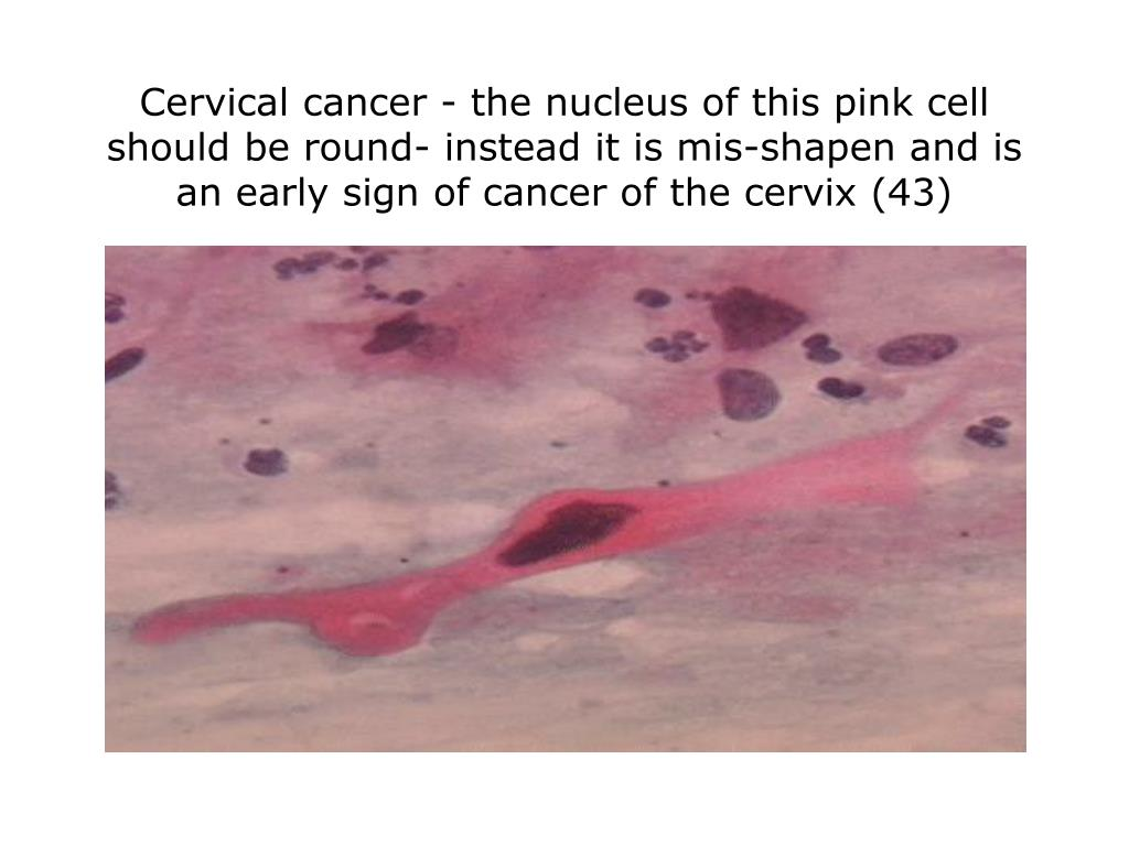 Cervical cancer - the nucleus of this pink cell should be round- instead it is mis-shapen and is an early sign of cancer of the cervix (43)