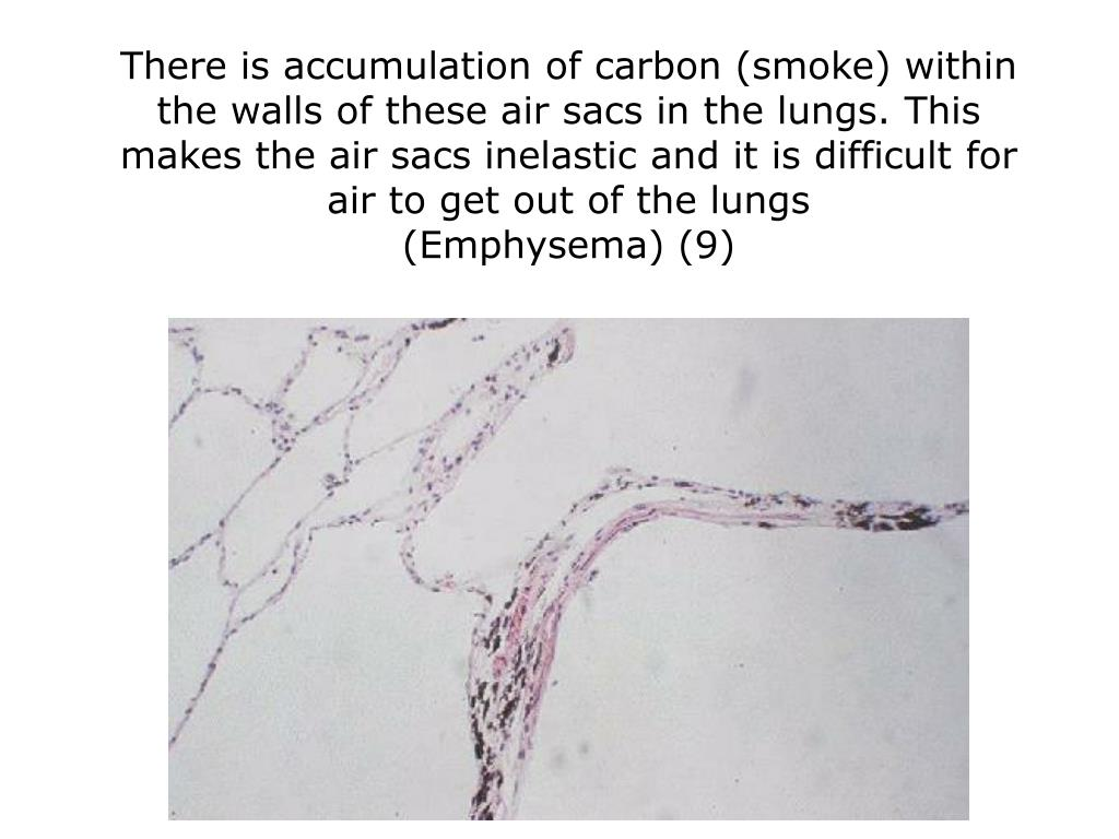 There is accumulation of carbon (smoke) within the walls of these air sacs in the lungs. This makes the air sacs inelastic and it is difficult for air to get out of the lungs