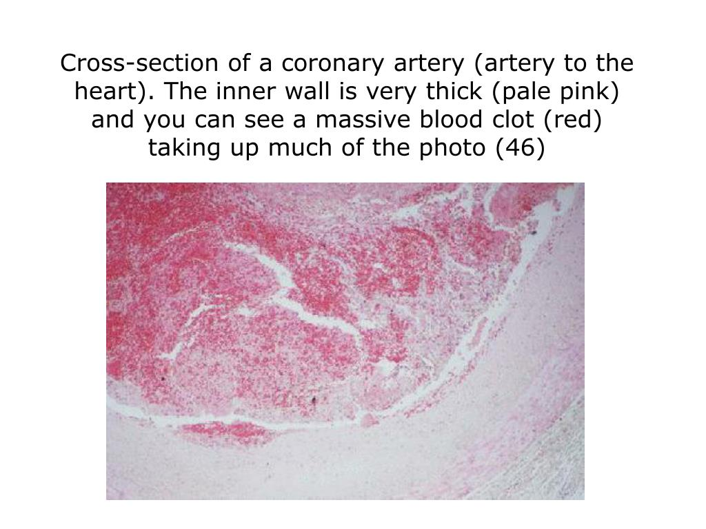 Cross-section of a coronary artery (artery to the heart). The inner wall is very thick (pale pink) and you can see a massive blood clot (red) taking up much of the photo (46)