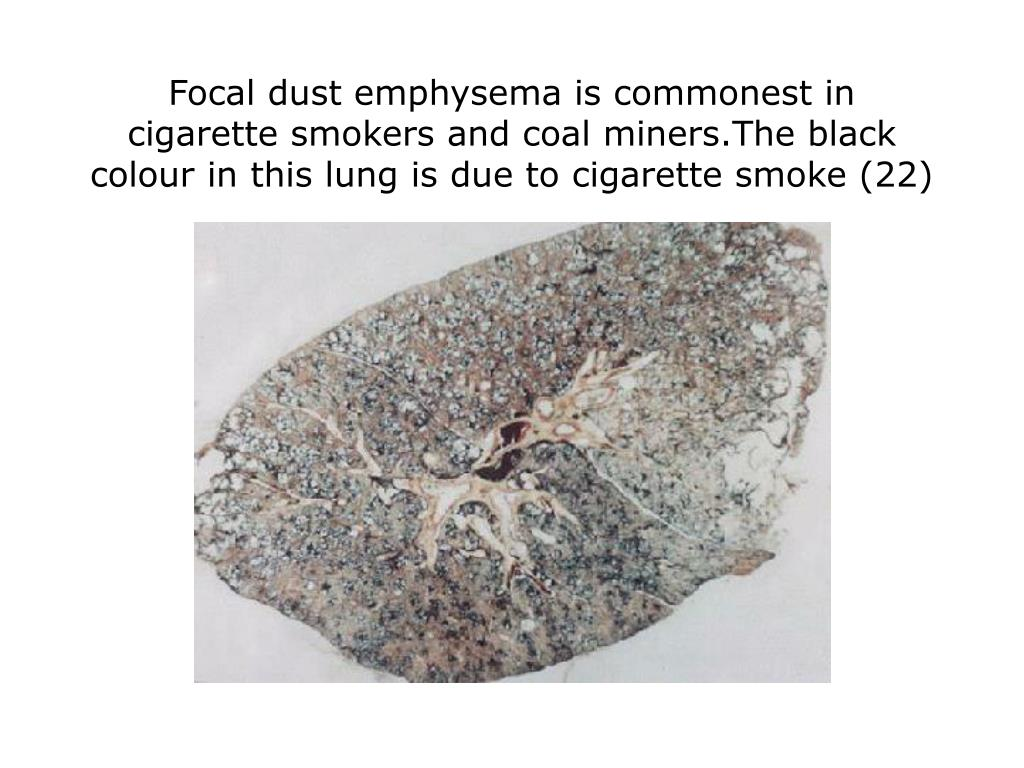 Focal dust emphysema is commonest in cigarette smokers and coal miners.The black colour in this lung is due to cigarette smoke (22)
