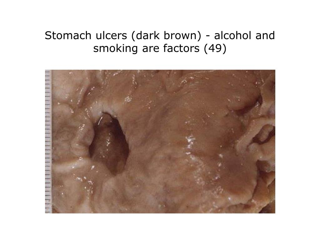 Stomach ulcers (dark brown) - alcohol and smoking are factors (49)