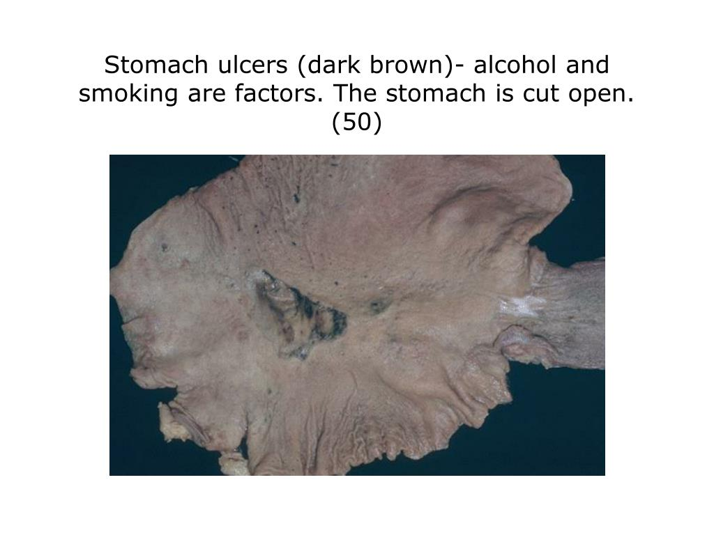 Stomach ulcers (dark brown)- alcohol and smoking are factors. The stomach is cut open. (50)