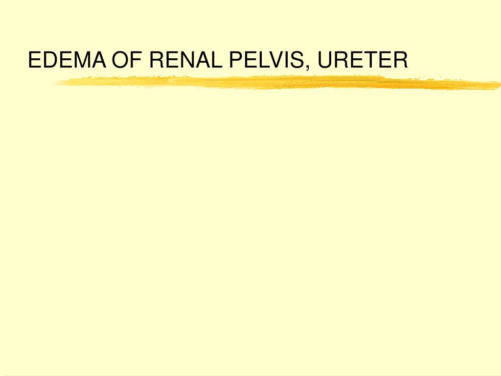 EDEMA OF RENAL PELVIS, URETER