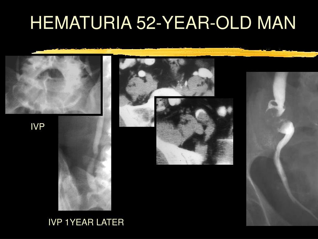 HEMATURIA 52-YEAR-OLD MAN