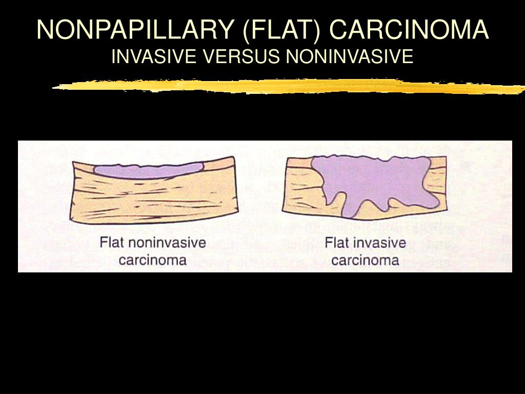 NONPAPILLARY (FLAT) CARCINOMA