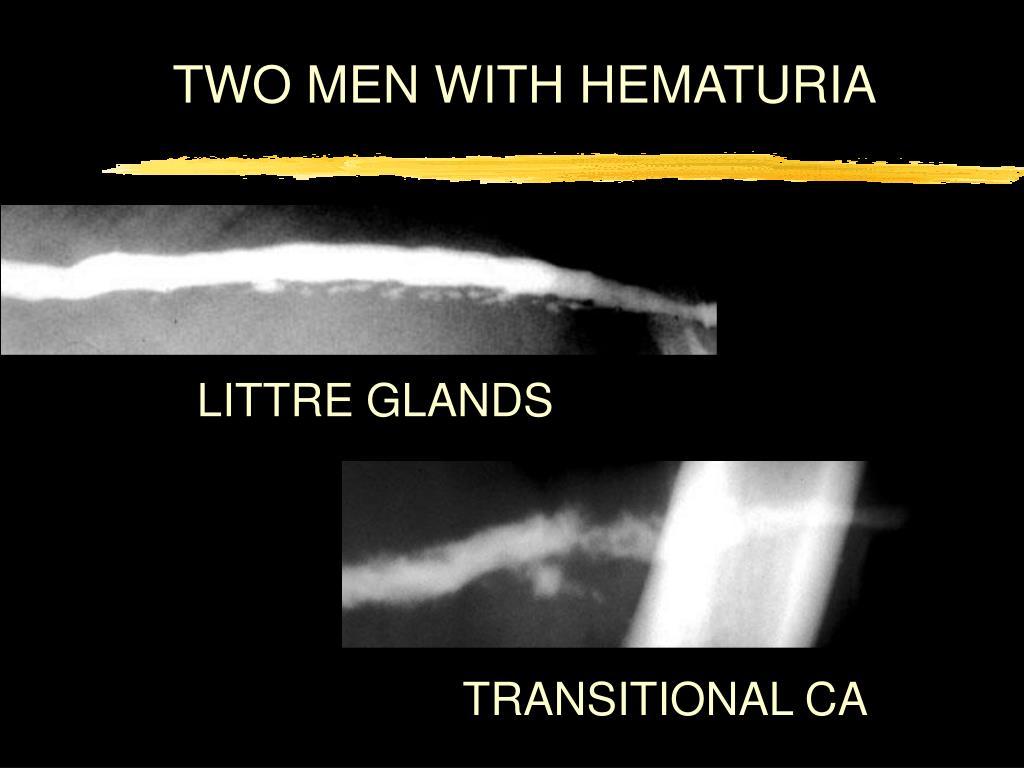 TWO MEN WITH HEMATURIA