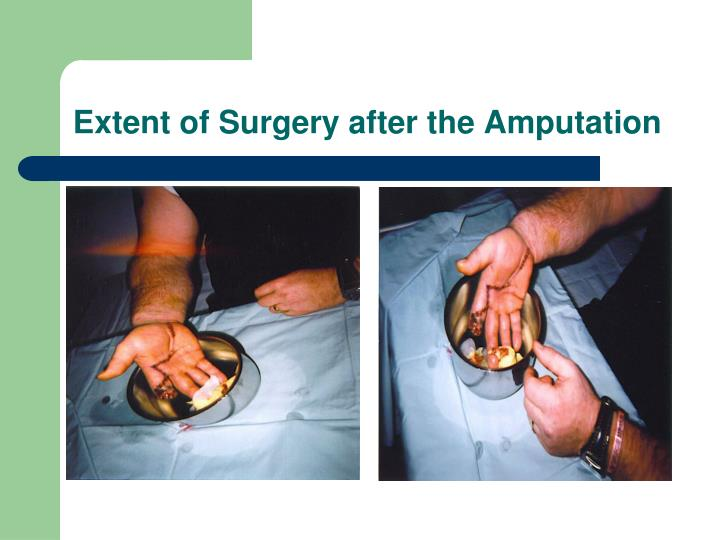 Extent of Surgery after the Amputation