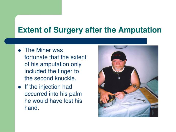 The Miner was fortunate that the extent of his amputation only included the finger to the second knuckle.