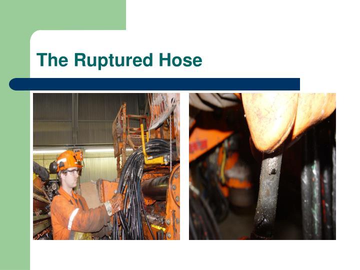 The Ruptured Hose