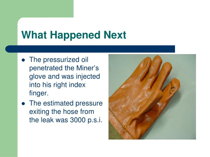 The pressurized oil penetrated the Miner's glove and was injected into his right index finger.