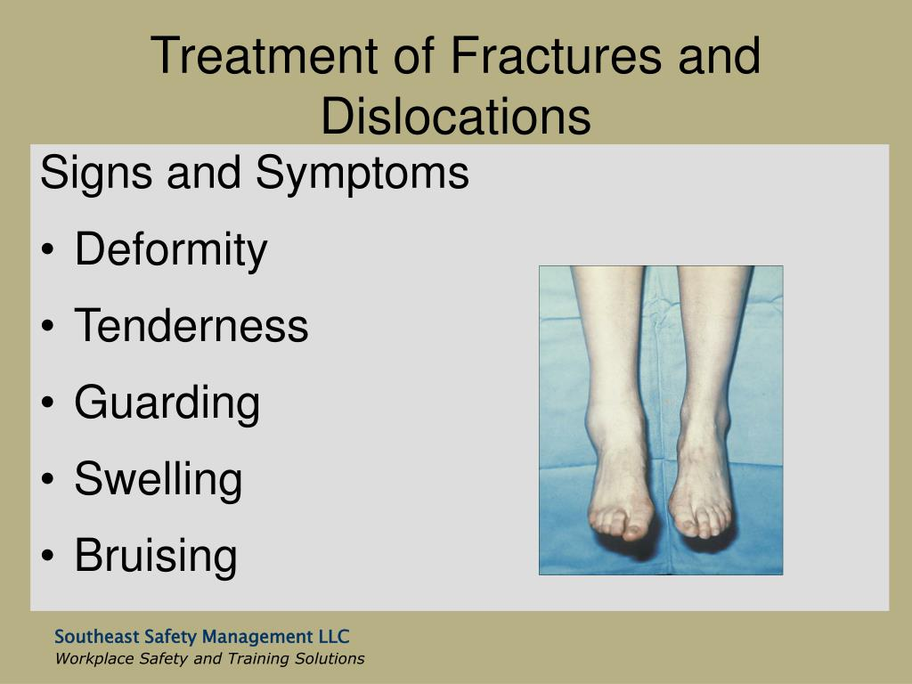 Treatment of Fractures and Dislocations