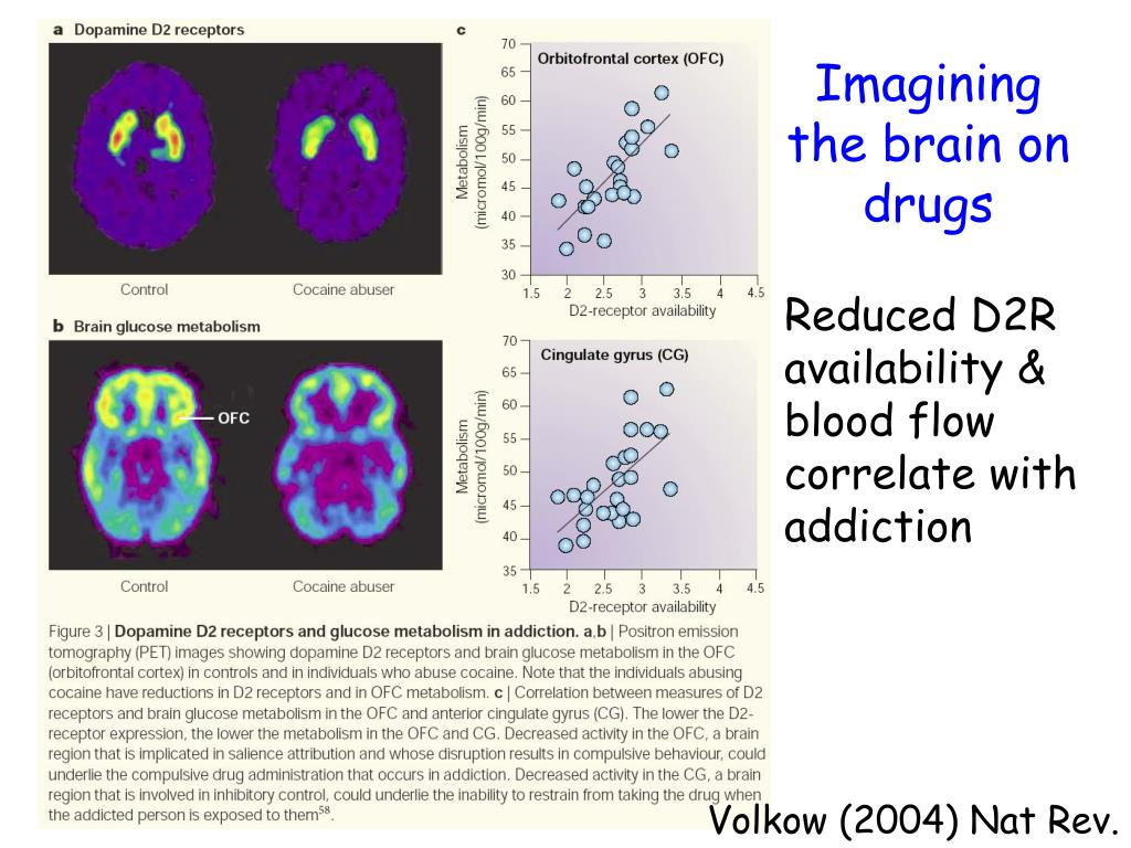 Imagining the brain on drugs
