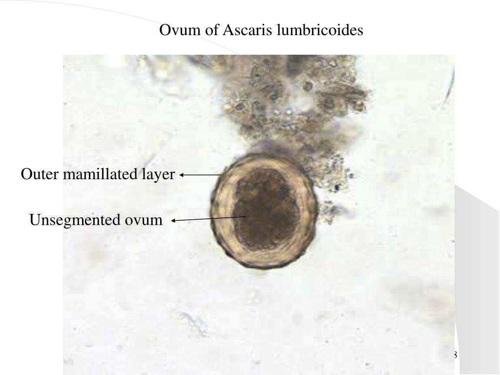 Ovum of Ascaris lumbricoides