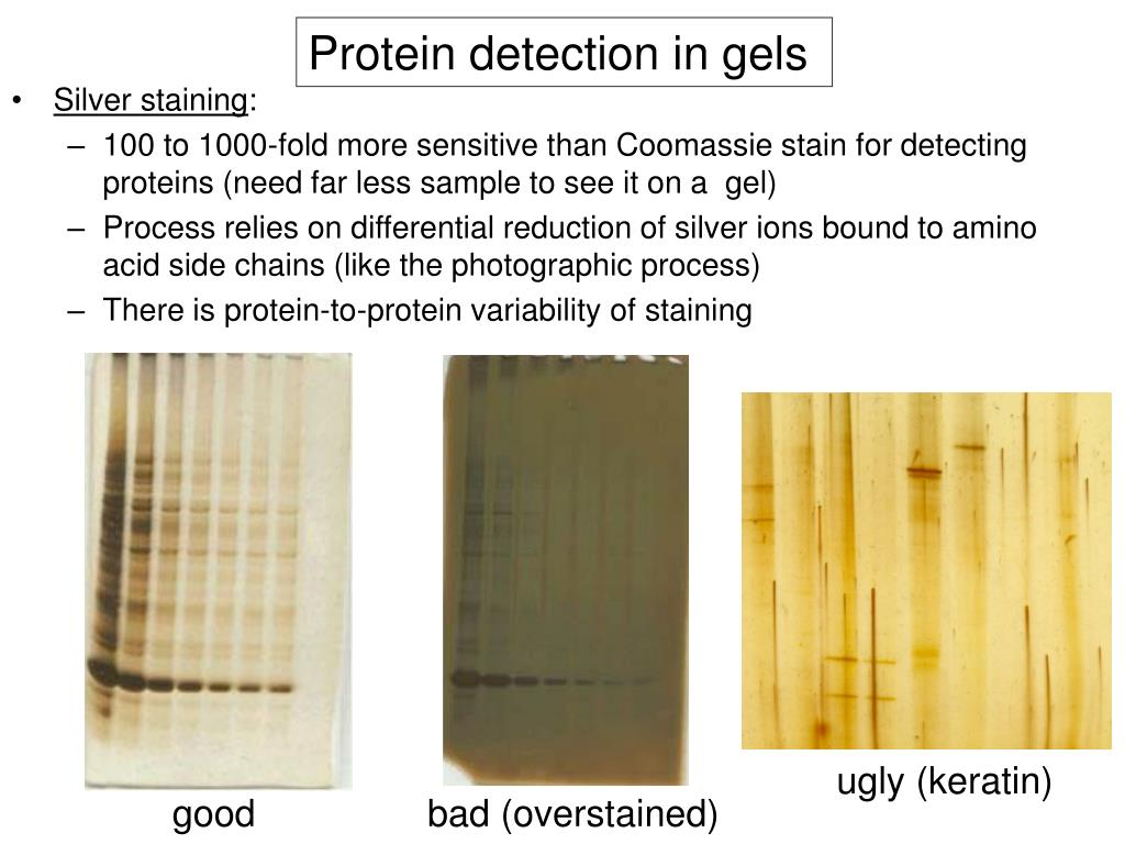 Protein detection in gels