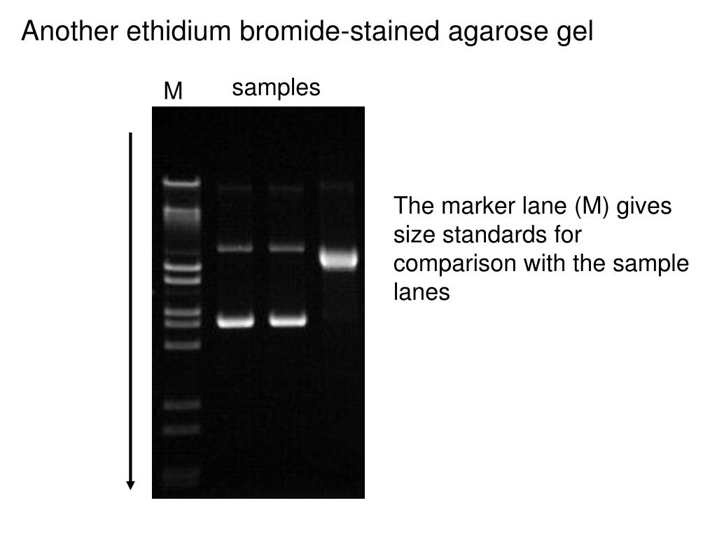 Another ethidium bromide-stained agarose gel
