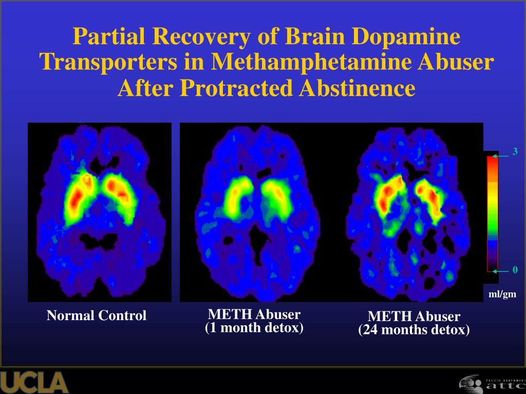 Partial Recovery of Brain Dopamine Transporters in Methamphetamine Abuser