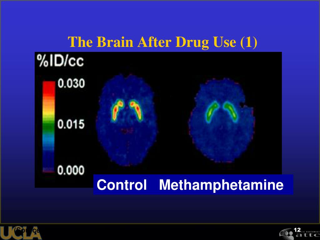 The Brain After Drug Use (1)
