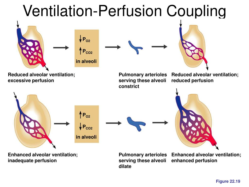 Ventilation-Perfusion Coupling