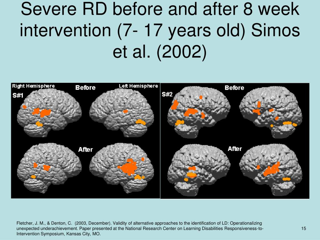 Severe RD before and after 8 week intervention (7- 17 years old) Simos et al. (2002)