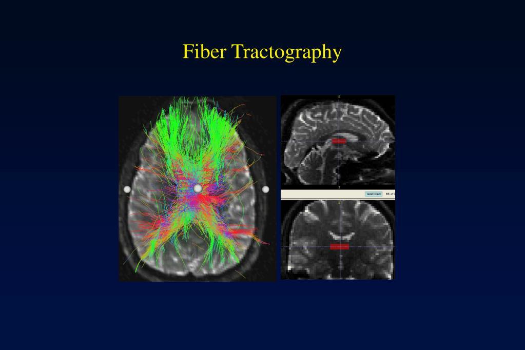 Fiber Tractography