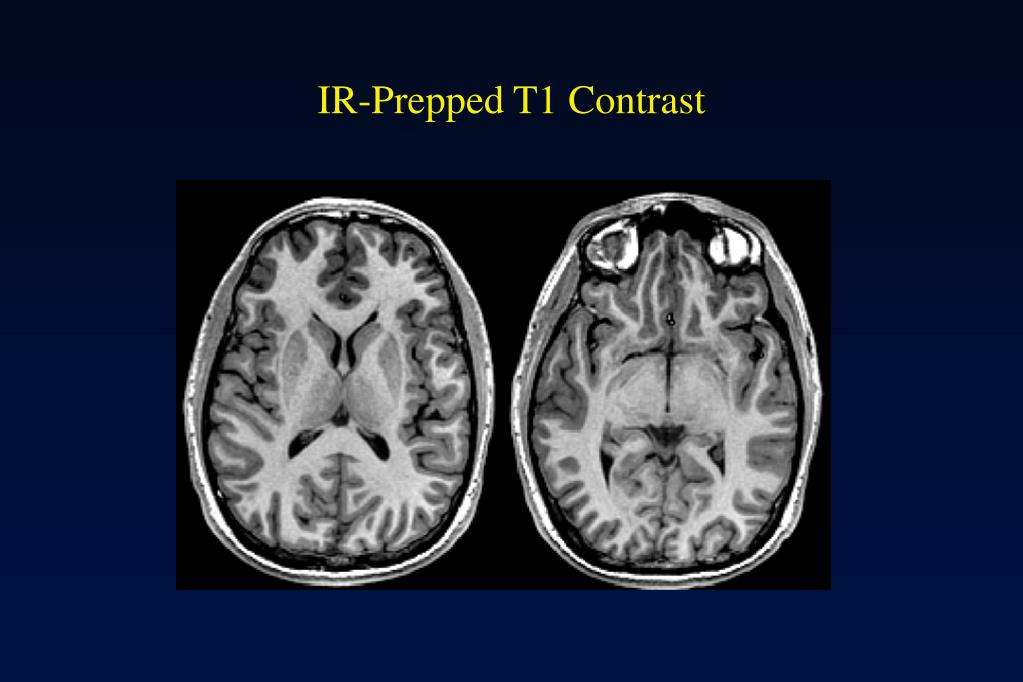 IR-Prepped T1 Contrast