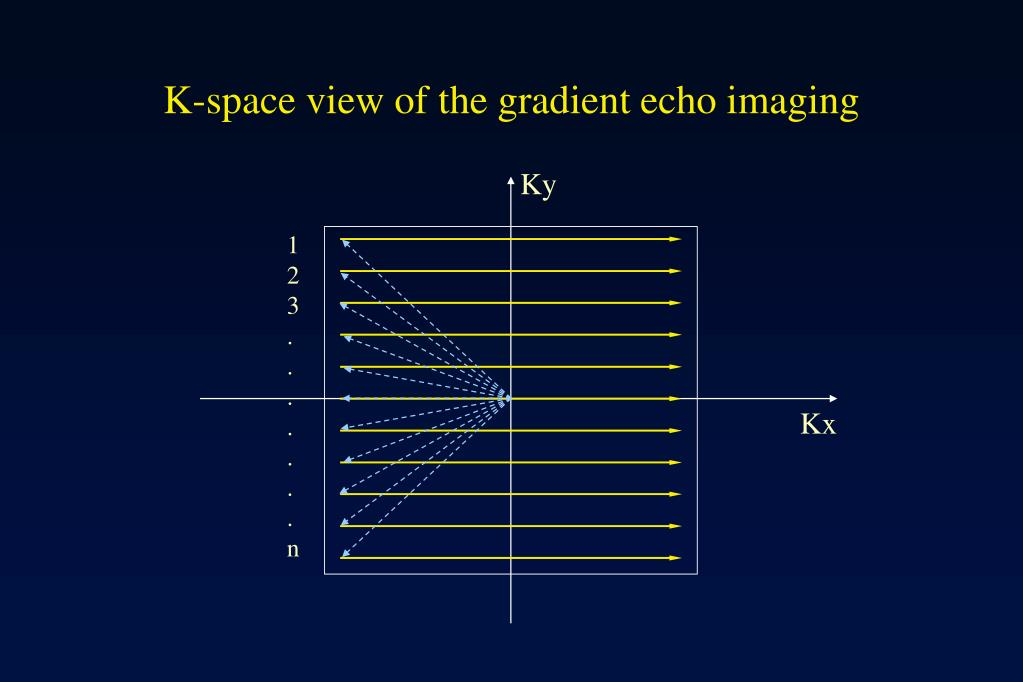 K-space view of the gradient echo imaging