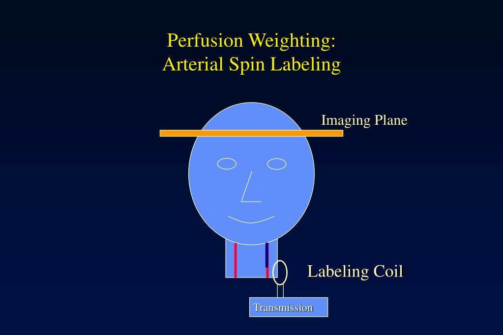 Perfusion Weighting: