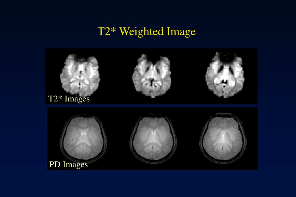 T2* Weighted Image