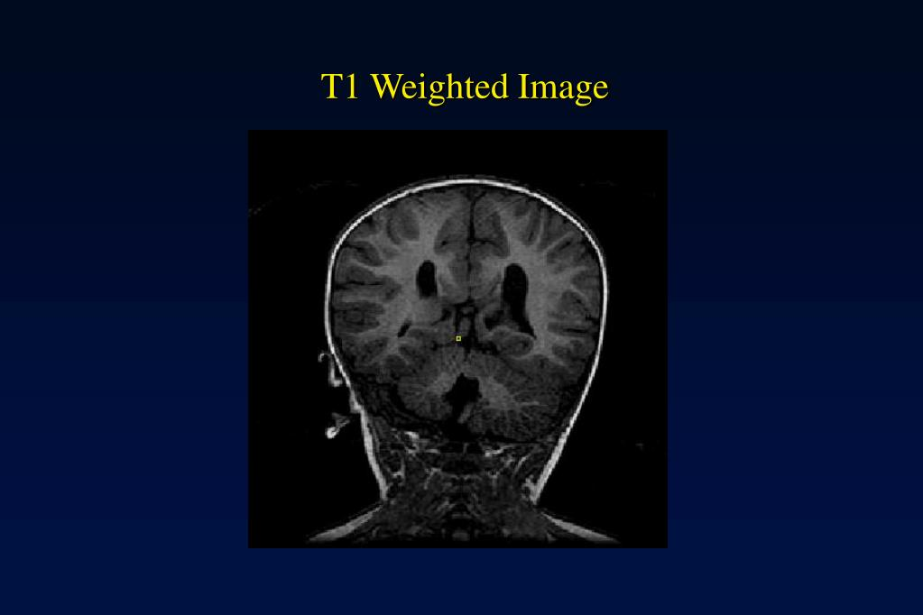 T1 Weighted Image