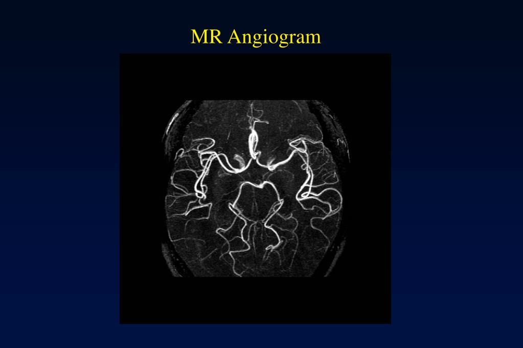 MR Angiogram