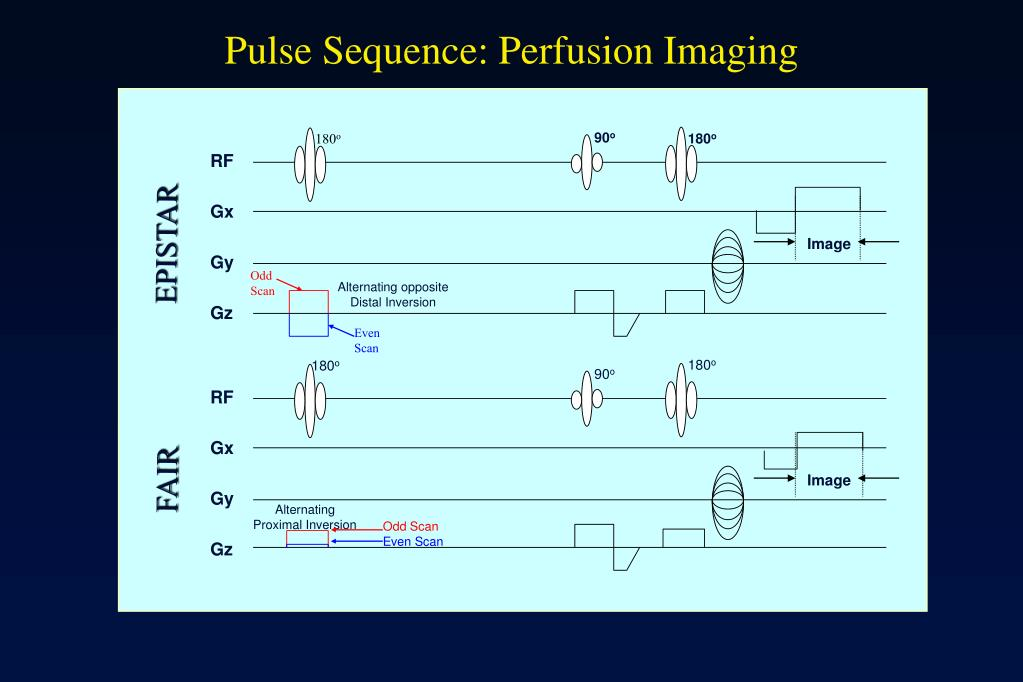 Pulse Sequence: Perfusion Imaging