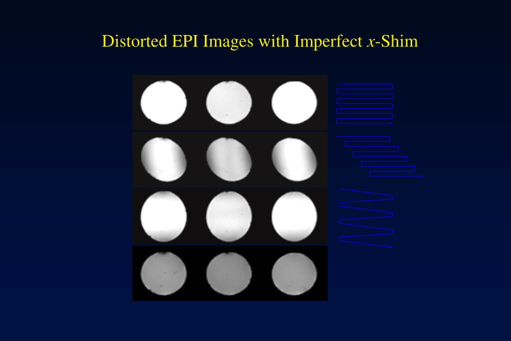 Distorted EPI Images with Imperfect