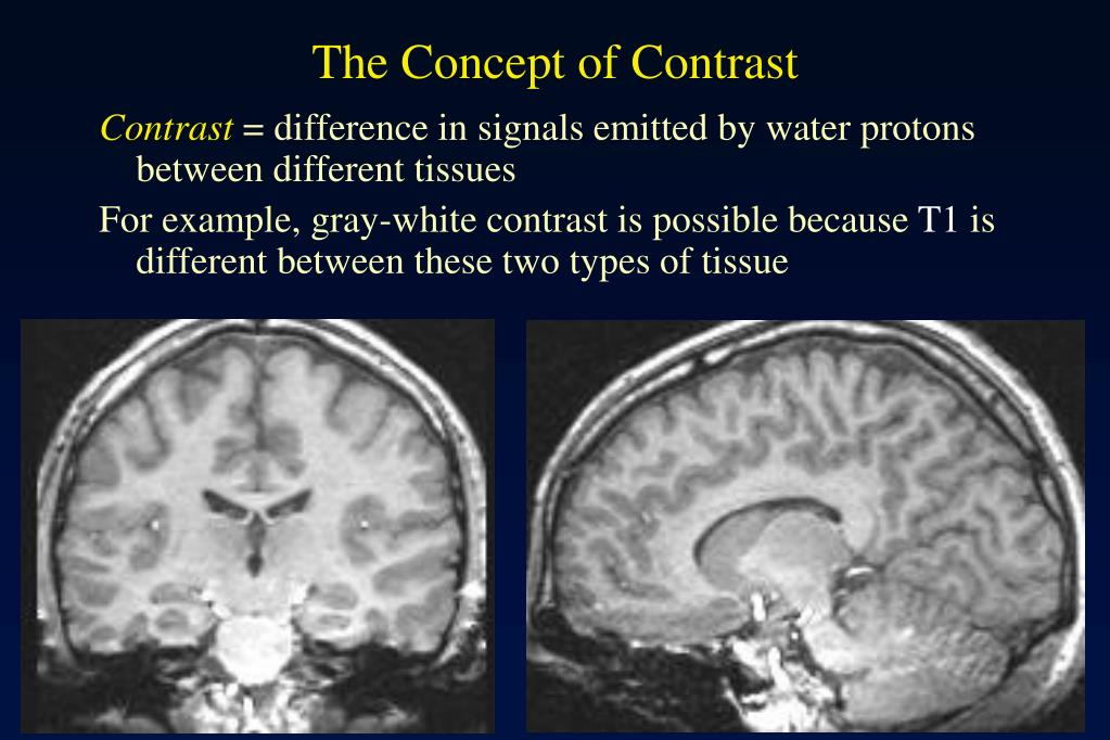 The Concept of Contrast