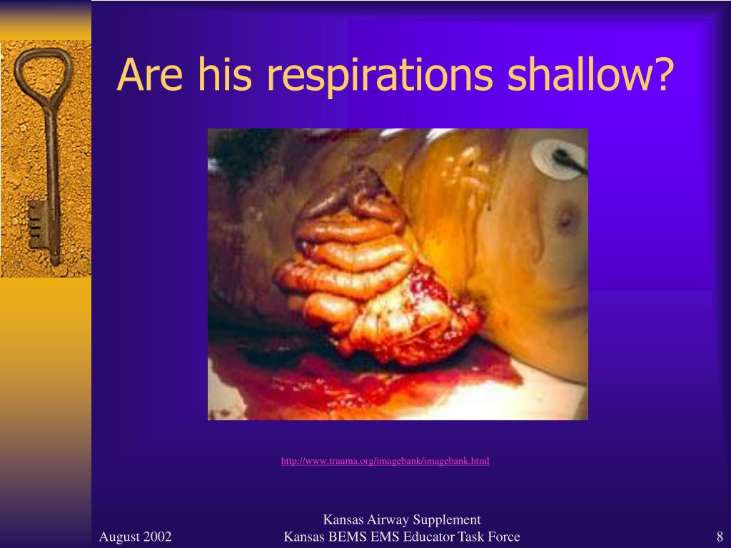 Are his respirations shallow?