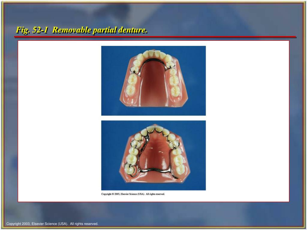 Fig. 52-1  Removable partial denture.