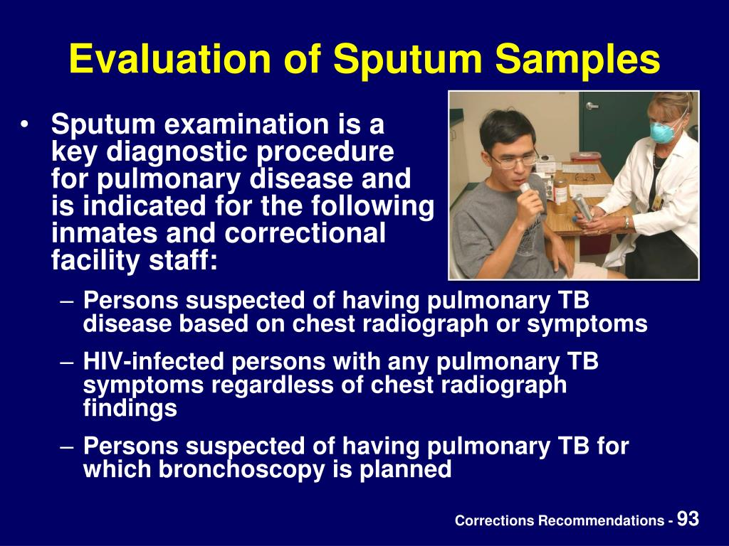 Evaluation of Sputum Samples