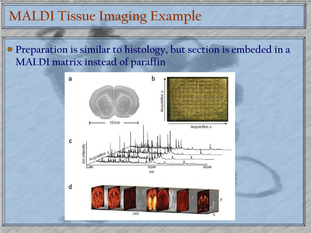 MALDI Tissue Imaging Example