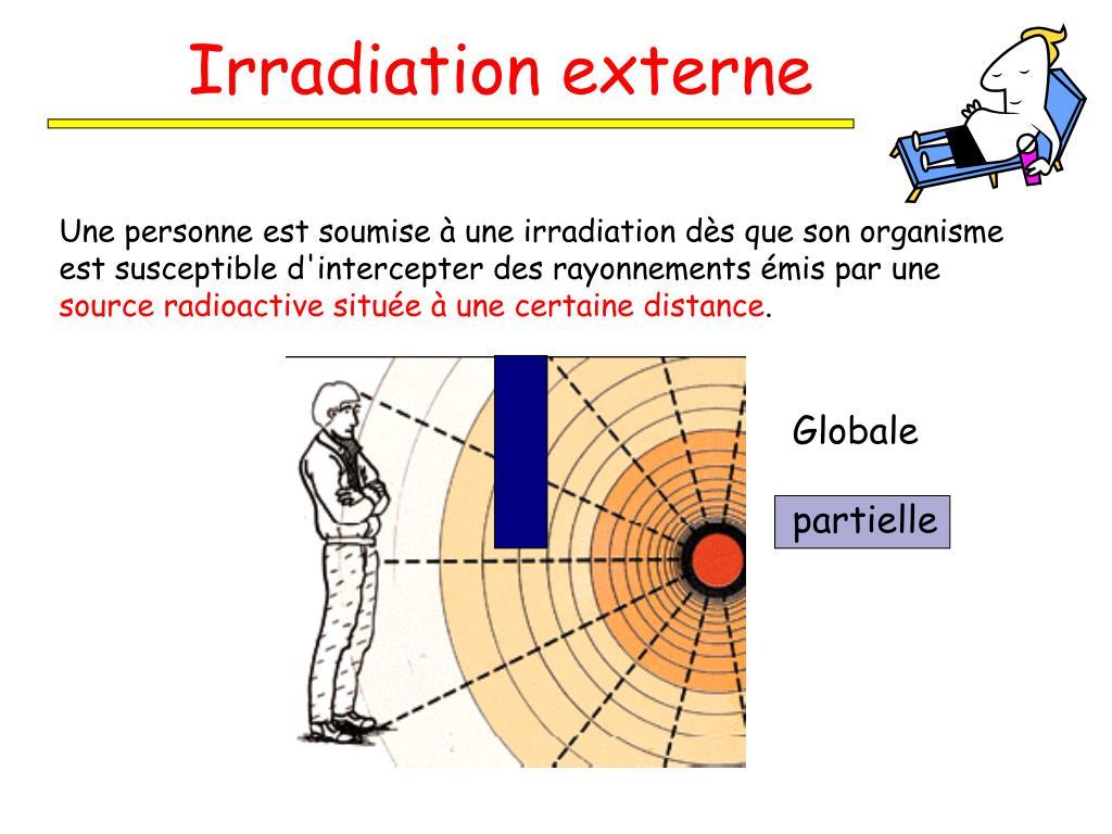 Irradiation externe