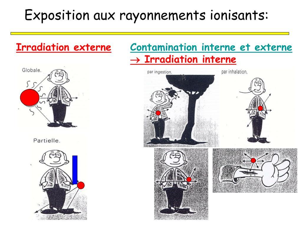Exposition aux rayonnements ionisants: