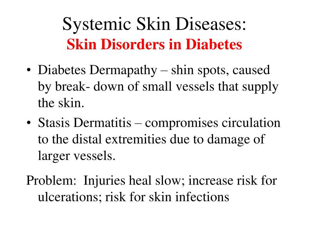 Systemic Skin Diseases: