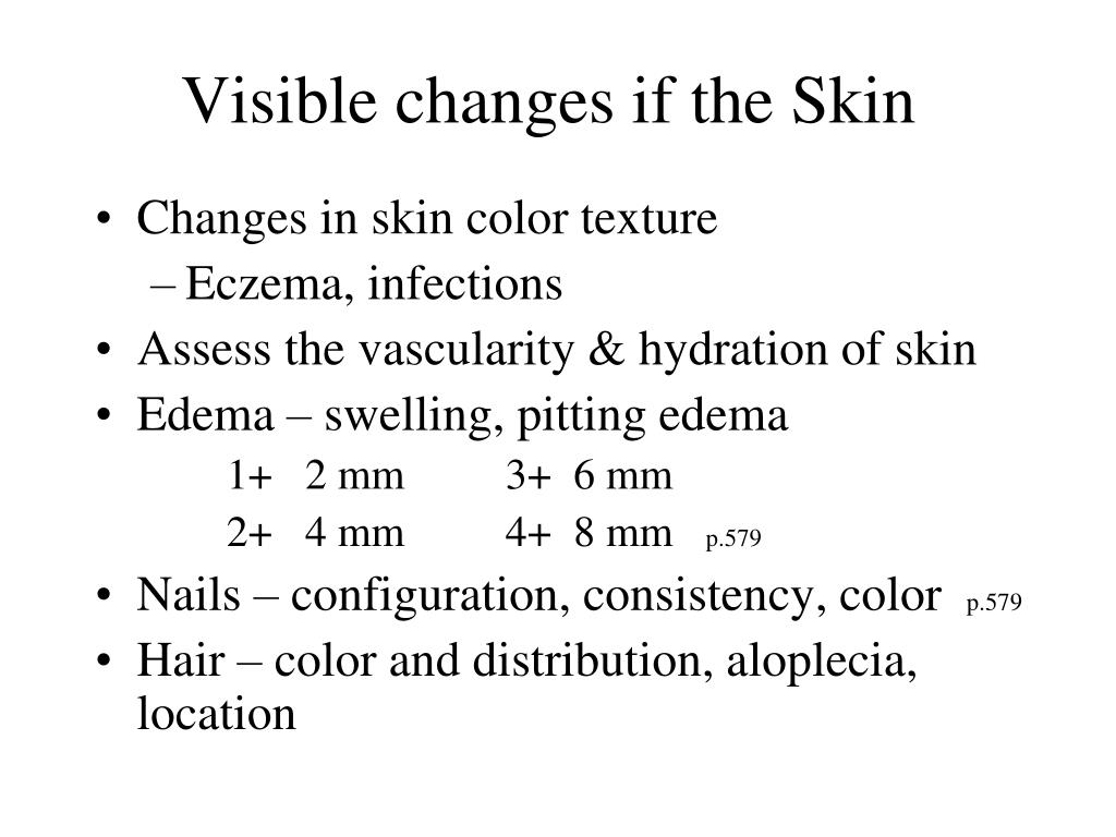Visible changes if the Skin