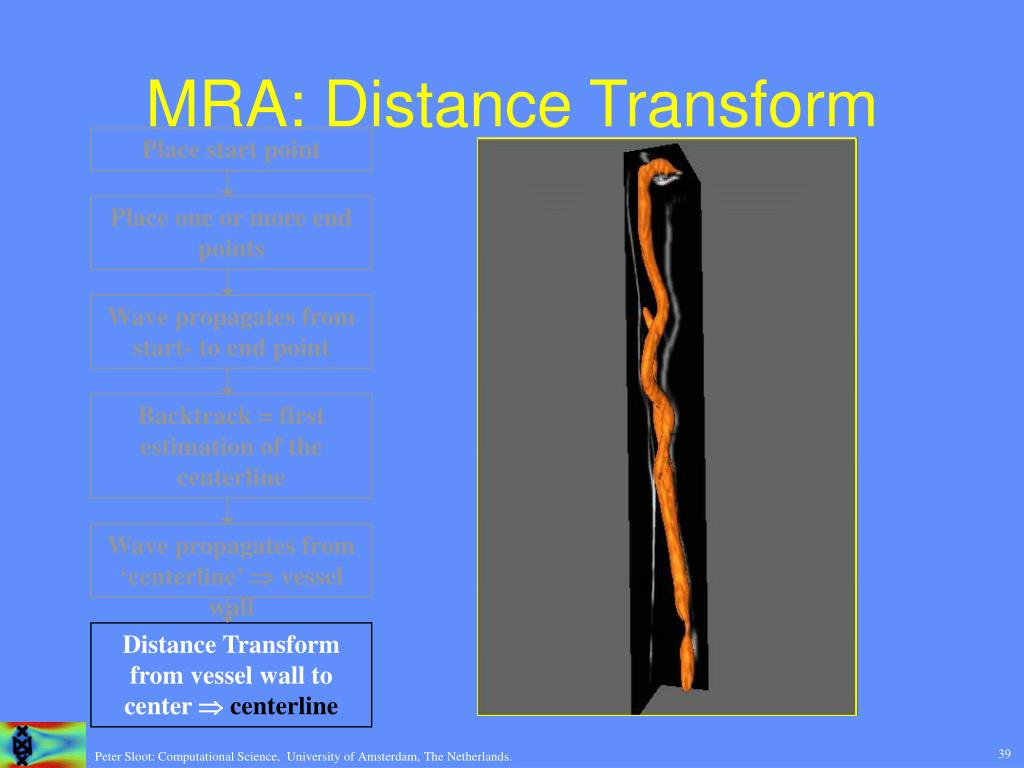 MRA: Distance Transform