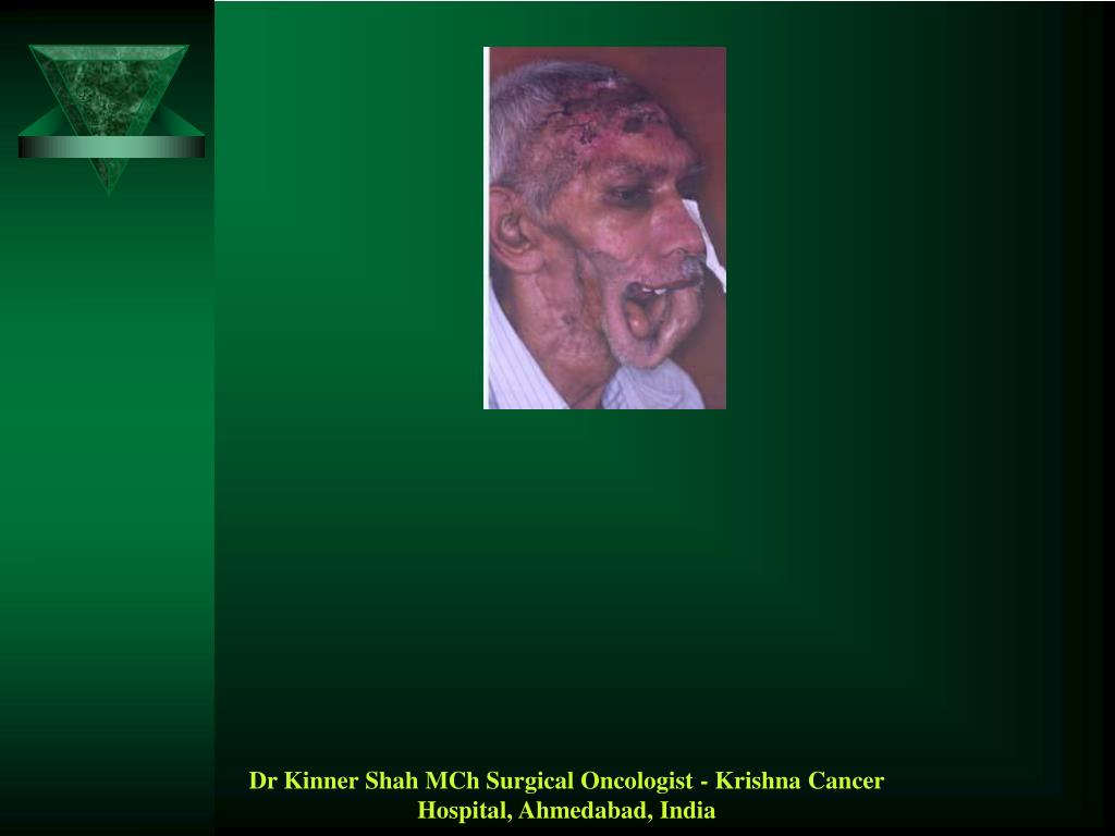 Dr Kinner Shah MCh Surgical Oncologist - Krishna Cancer Hospital, Ahmedabad, India