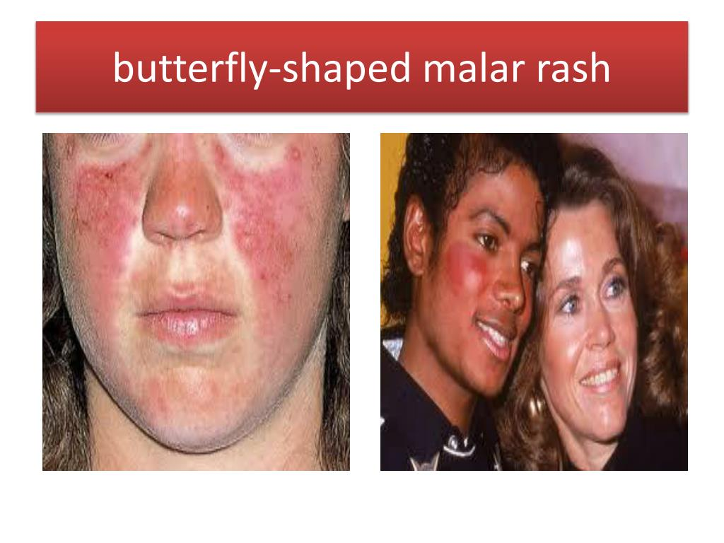 butterfly-shaped malar rash