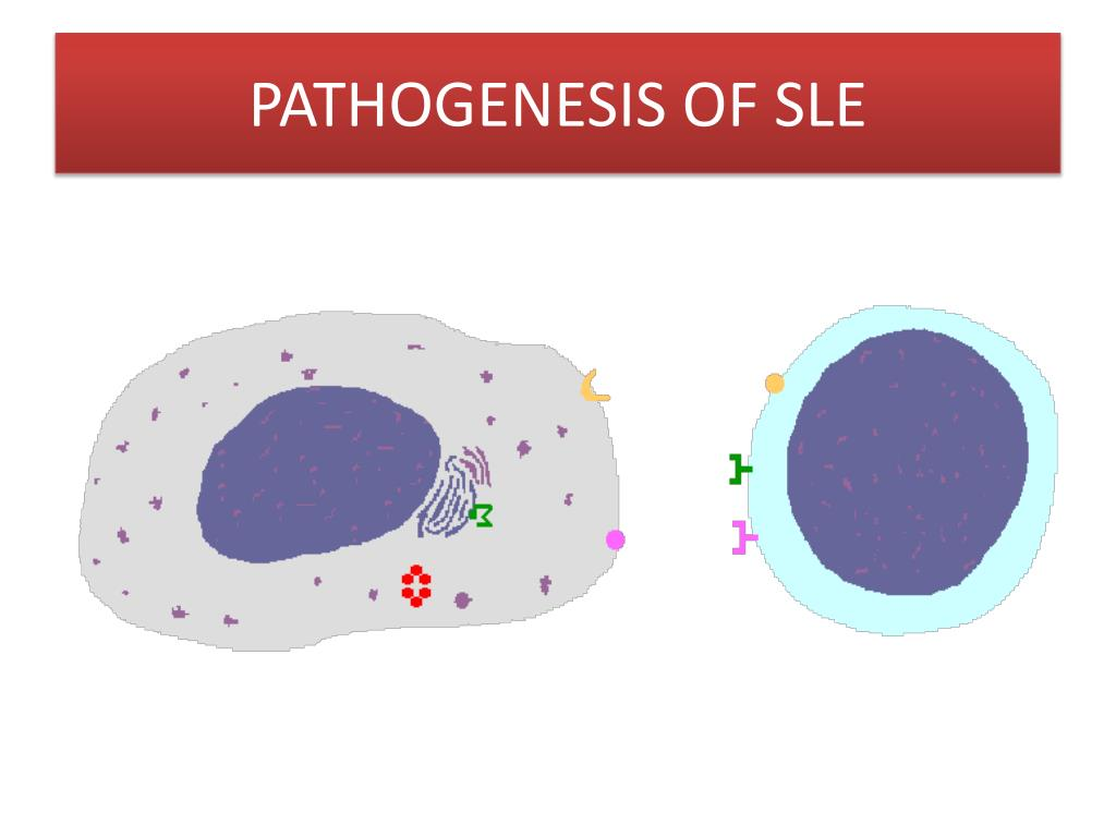 PATHOGENESIS OF SLE